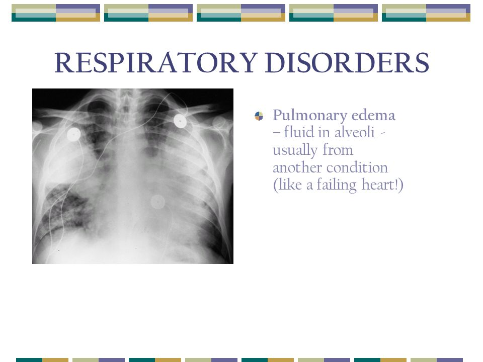 RESPIRATORY DISORDERS Pulmonary edema – fluid in alveoli - usually from another condition (like a failing heart!)