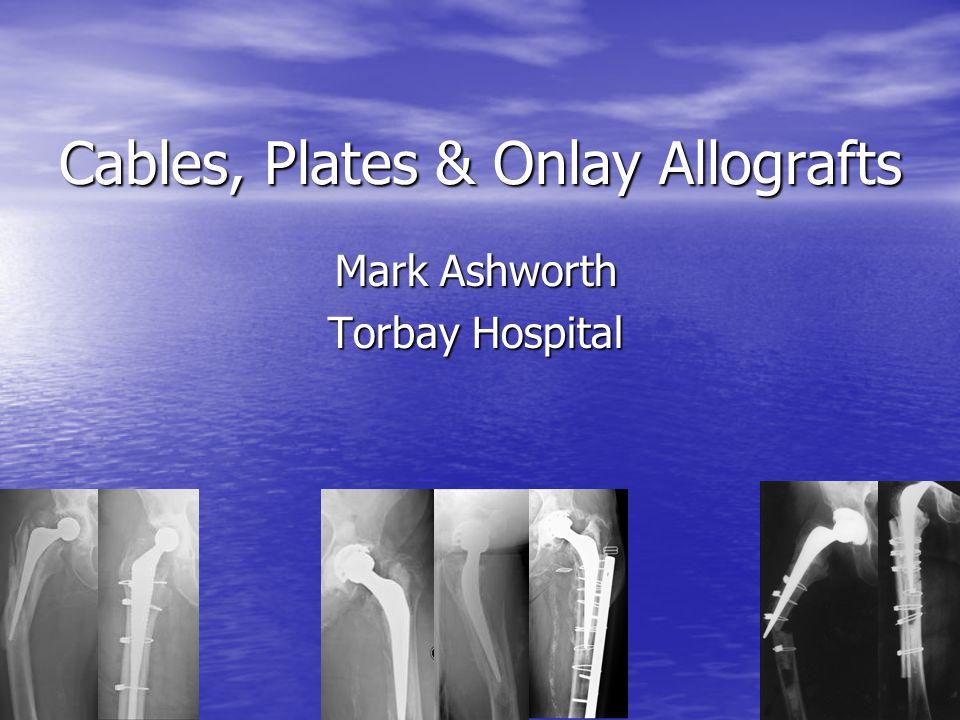 Cables, Plates & Onlay Allografts Mark Ashworth Torbay Hospital