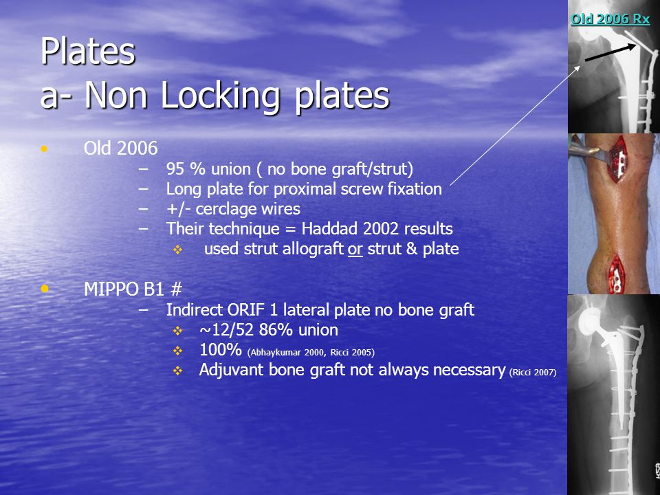 Plates a- Non Locking plates Old 2006 – –95 % union ( no bone graft/strut) – –Long plate for proximal screw fixation – –+/- cerclage wires – –Their te