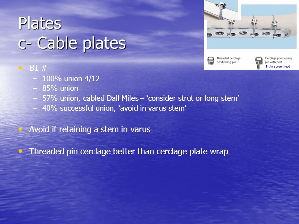 Plates c- Cable plates B1 # – –100% union 4/12 – –85% union – –57% union, cabled Dall Miles – consider strut or long stem – –40% successful union, avo