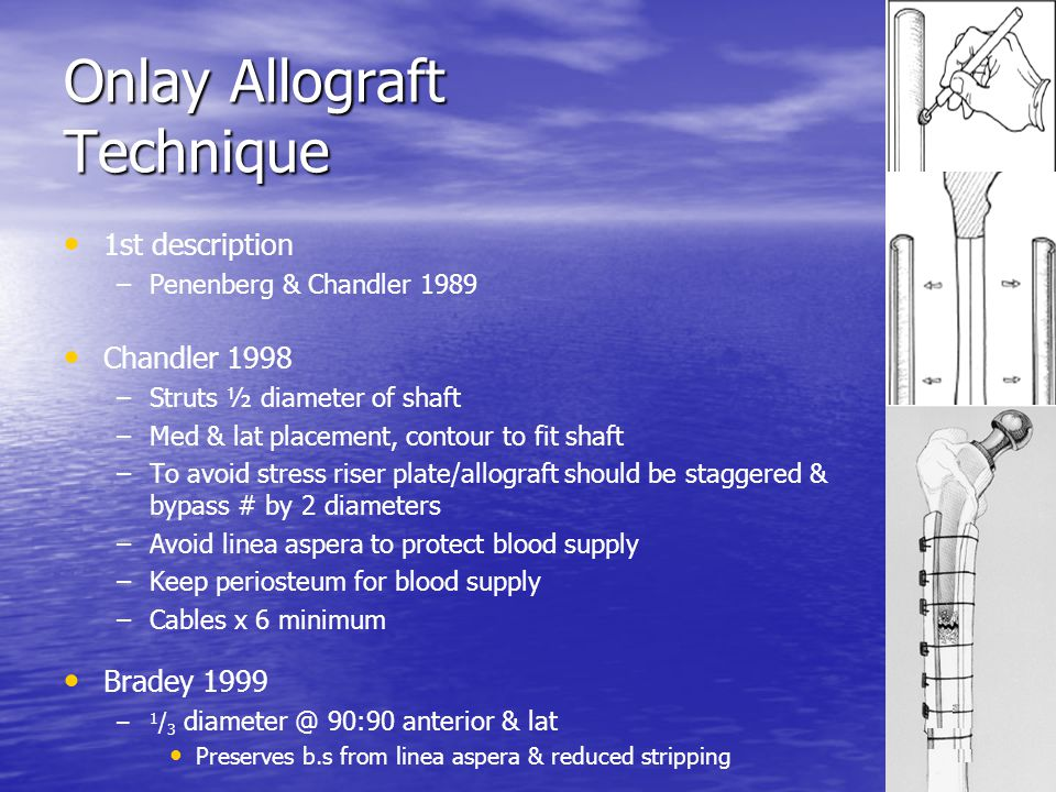 Onlay Allograft Technique 1st description – –Penenberg & Chandler 1989 Chandler 1998 – –Struts ½ diameter of shaft – –Med & lat placement, contour to