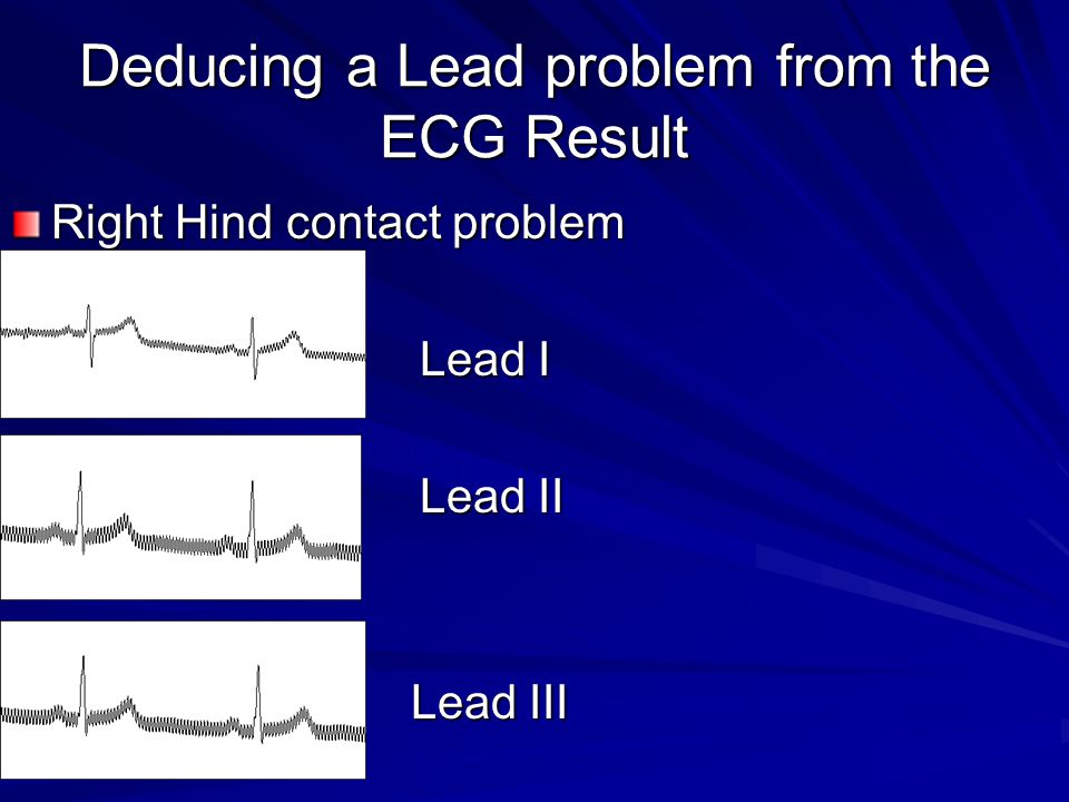 Deducing a Lead problem from the ECG Result Right Hind contact problem Lead I Lead I Lead II Lead II Lead III Lead III