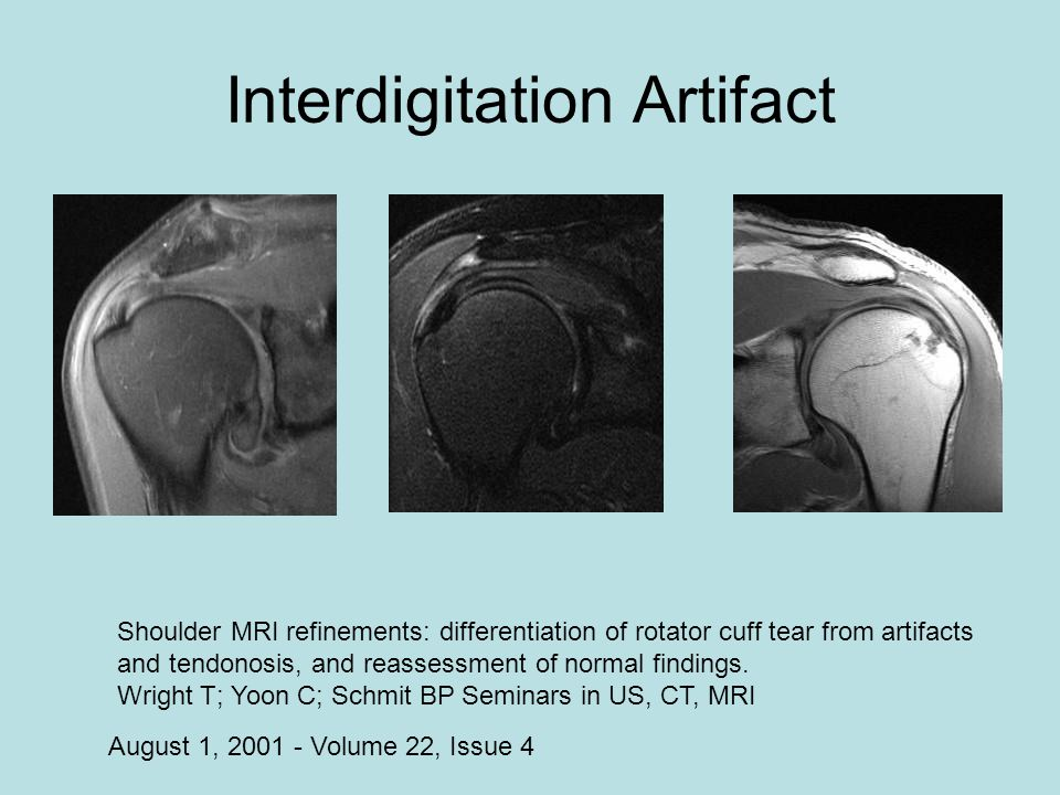 Interdigitation Artifact August 1, 2001 - Volume 22, Issue 4 Shoulder MRI refinements: differentiation of rotator cuff tear from artifacts and tendono