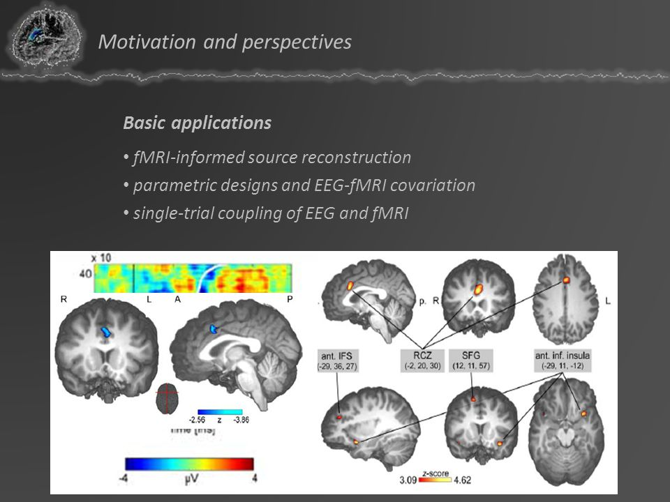 Basic applications fMRI-informed source reconstruction parametric designs and EEG-fMRI covariation single-trial coupling of EEG and fMRI Motivation an