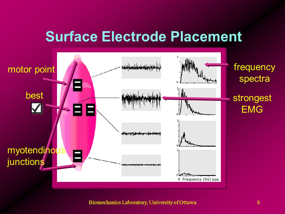 Biomechanics Laboratory, University of Ottawa9 Noise Reduction and Grounding leads should be immobilized to skin surgical webbing can help reduce movement artifacts ground electrode placed over electrically neutral area usually bone N.B.