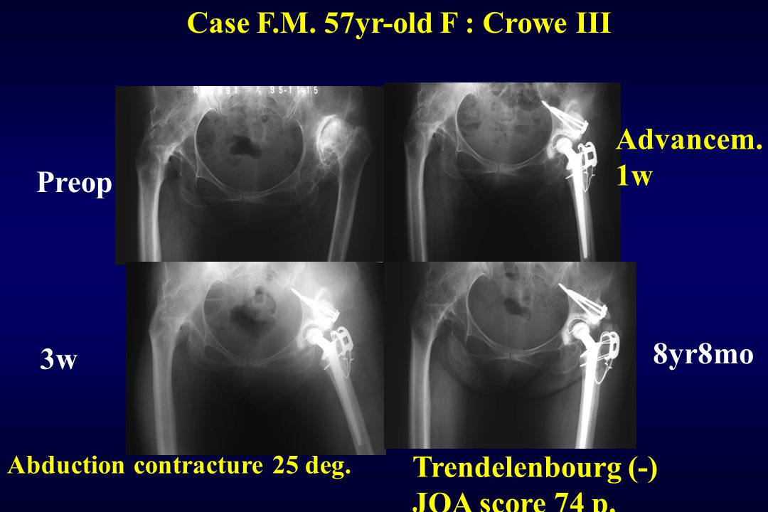 Case F.M. 57yr-old F : Crowe III Preop 3w Advancem. 1w 8yr8mo Abduction contracture 25 deg. Trendelenbourg (-) JOA score 74 p.