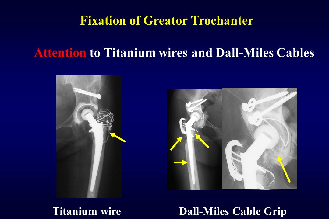 Fixation of Greator Trochanter Titanium wireDall-Miles Cable Grip Attention to Titanium wires and Dall-Miles Cables