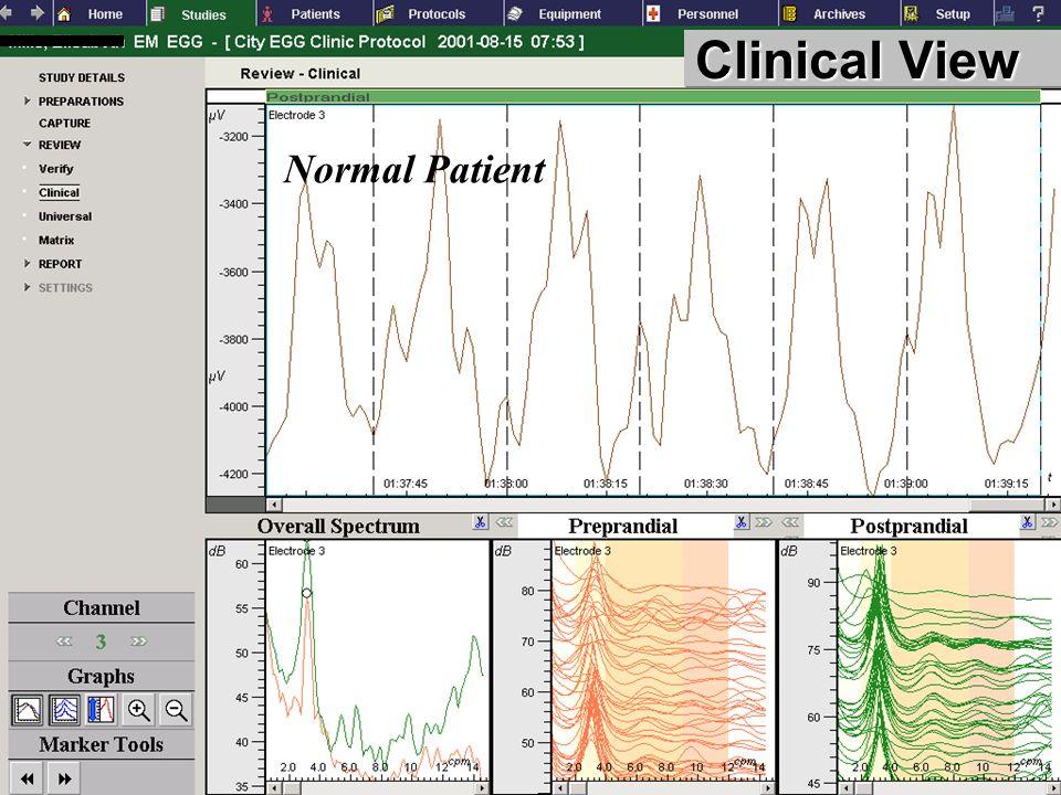 FUNCTIONAL DIAGNOSTICS GASTROINTESTINAL Clinical View Normal Patient
