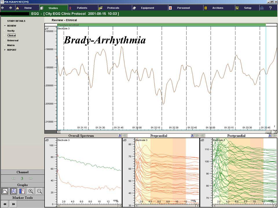 FUNCTIONAL DIAGNOSTICS GASTROINTESTINAL Brady-Arrhythmia
