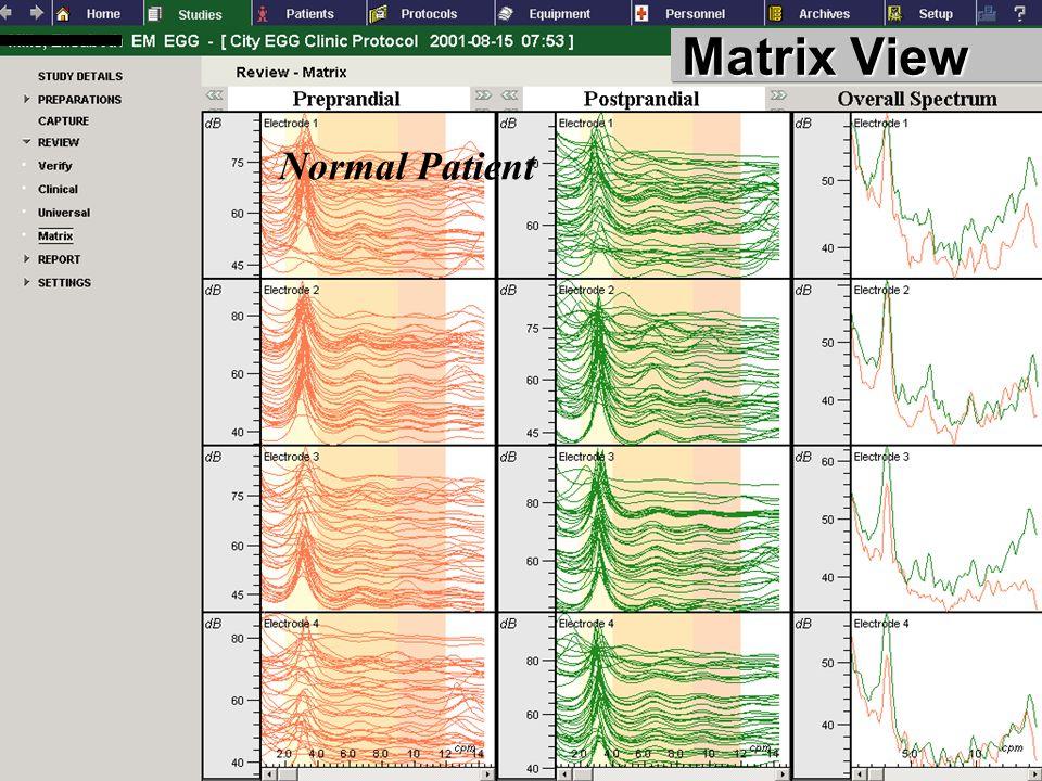 FUNCTIONAL DIAGNOSTICS GASTROINTESTINAL Matrix View Normal Patient