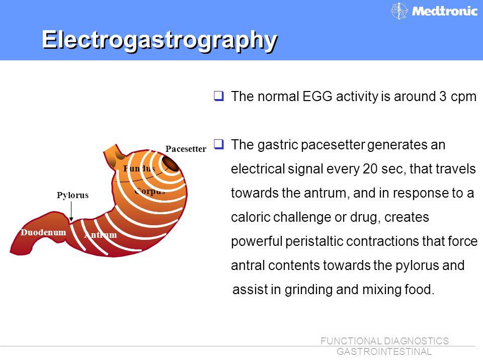 FUNCTIONAL DIAGNOSTICS GASTROINTESTINAL Electrogastrography Fundus Corpus Antrum Pylorus Pacesetter qThe normal EGG activity is around 3 cpm qThe gast