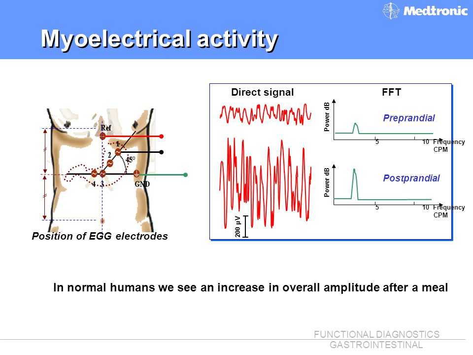 FUNCTIONAL DIAGNOSTICS GASTROINTESTINAL Myoelectrical activity Position of EGG electrodes In normal humans we see an increase in overall amplitude aft