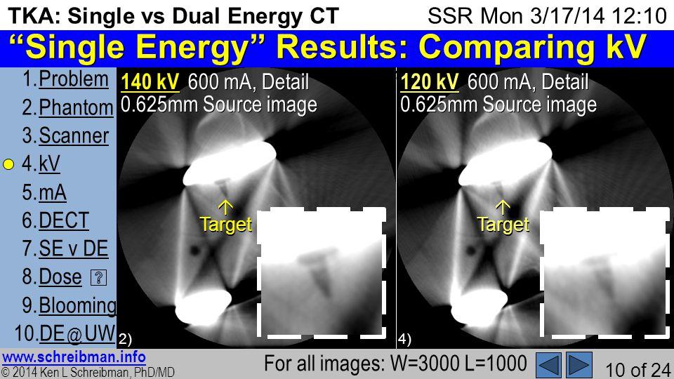 © 2014 Ken L Schreibman, PhD/MD www.schreibman.info 10 of 24 TKA: Single vs Dual Energy CT 1.ProblemProblem 2.PhantomPhantom 3.ScannerScanner 4.kVkV 5.mAmA 6.DECTDECT 7.SE v DESE v DE 8.DoseDose 9.BloomingBlooming 10.DE @ UWDE @ UW SSR Mon 3/17/14 12:10 First tested the effect of changing kV using conventional Single Energy CT 4) 600 mA, Detail 0.625mm Source image 600 mA, Detail 0.625mm Source image 2) Single Energy Results: Comparing kV For all images: W=3000 L=1000 TargetTarget 140 kV 120 kV