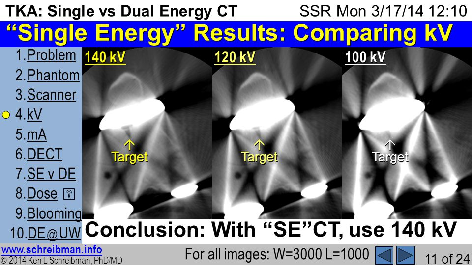 © 2014 Ken L Schreibman, PhD/MD www.schreibman.info 11 of 24 TKA: Single vs Dual Energy CT 1.ProblemProblem 2.PhantomPhantom 3.ScannerScanner 4.kVkV 5.mAmA 6.DECTDECT 7.SE v DESE v DE 8.DoseDose 9.BloomingBlooming 10.DE @ UWDE @ UW SSR Mon 3/17/14 12:10 Single Energy Results: Comparing kV For all images: W=3000 L=1000 2) 140 kV Target 4) 120 kV Target 6) 100 kV Target Conclusion: With SECT, use 140 kV