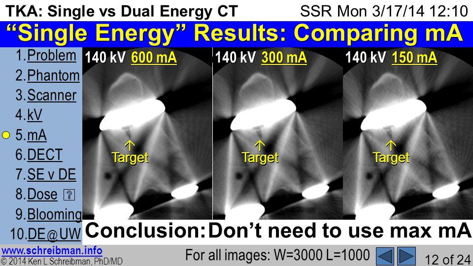 © 2014 Ken L Schreibman, PhD/MD www.schreibman.info 12 of 24 TKA: Single vs Dual Energy CT 1.ProblemProblem 2.PhantomPhantom 3.ScannerScanner 4.kVkV 5.mAmA 6.DECTDECT 7.SE v DESE v DE 8.DoseDose 9.BloomingBlooming 10.DE @ UWDE @ UW SSR Mon 3/17/14 12:10 Then, holding kV=140, varied mA Single Energy Results: Comparing mA For all images: W=3000 L=1000 2) 140 kV 600 mA 8) 140 kV 300 mA 10) 140 kV 150 mA TargetTargetTarget Conclusion: Dont need to use max mA