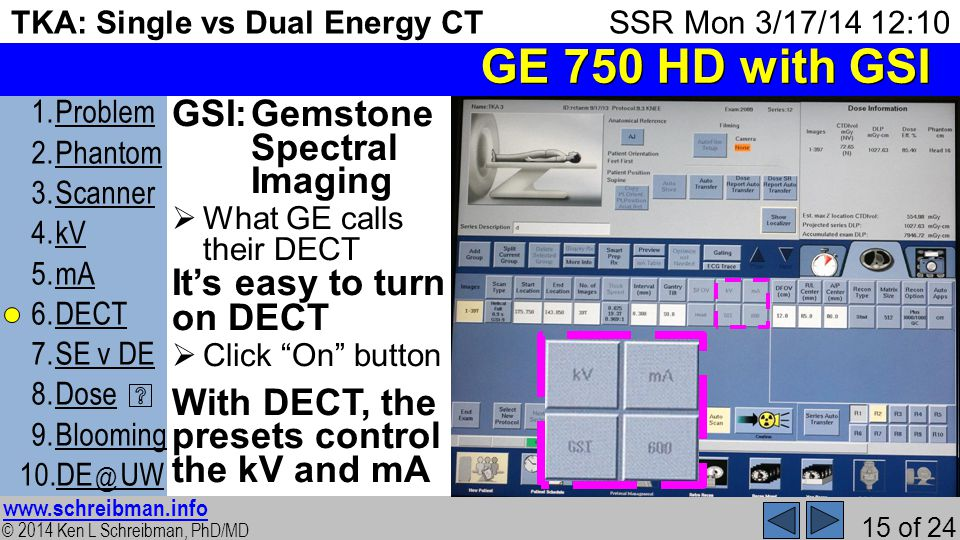 © 2014 Ken L Schreibman, PhD/MD www.schreibman.info 15 of 24 TKA: Single vs Dual Energy CT 1.ProblemProblem 2.PhantomPhantom 3.ScannerScanner 4.kVkV 5