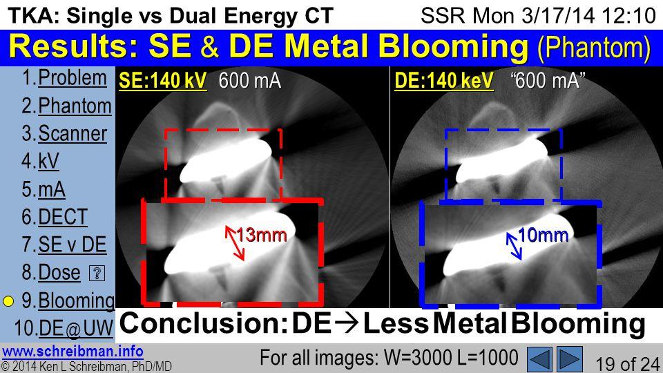© 2014 Ken L Schreibman, PhD/MD www.schreibman.info 19 of 24 TKA: Single vs Dual Energy CT 1.ProblemProblem 2.PhantomPhantom 3.ScannerScanner 4.kVkV 5.mAmA 6.DECTDECT 7.SE v DESE v DE 8.DoseDose 9.BloomingBlooming 10.DE @ UWDE @ UW SSR Mon 3/17/14 12:10 Results: SE & DE Metal Blooming (Phantom) 600 mA 2) SE:140 kV For all images: W=3000 L=1000 600 mA 12) DE:140 keV Conclusion: DE Less Metal Blooming 13mm 10mm