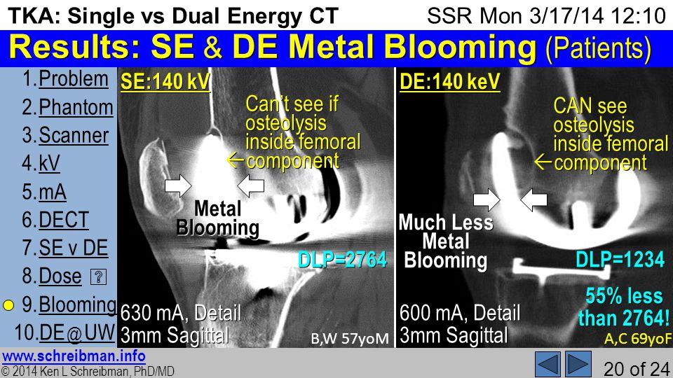 © 2014 Ken L Schreibman, PhD/MD www.schreibman.info 20 of 24 TKA: Single vs Dual Energy CT 1.ProblemProblem 2.PhantomPhantom 3.ScannerScanner 4.kVkV 5.mAmA 6.DECTDECT 7.SE v DESE v DE 8.DoseDose 9.BloomingBlooming 10.DE @ UWDE @ UW SSR Mon 3/17/14 12:10 Results: SE & DE Metal Blooming (Patients) B,W 57yoM 630 mA, Detail 3mm Sagittal SE:140 kV A,C 69yoF 600 mA, Detail 3mm Sagittal DE:140 keV MetalBlooming DLP=2764DLP=1234 Cant see if osteolysis inside femoral component Much Less MetalBlooming CAN see osteolysis inside femoral component 55% less than 2764!