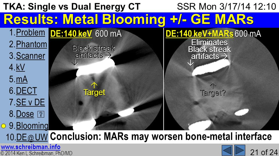 © 2014 Ken L Schreibman, PhD/MD www.schreibman.info 21 of 24 TKA: Single vs Dual Energy CT 1.ProblemProblem 2.PhantomPhantom 3.ScannerScanner 4.kVkV 5.mAmA 6.DECTDECT 7.SE v DESE v DE 8.DoseDose 9.BloomingBlooming 10.DE @ UWDE @ UW SSR Mon 3/17/14 12:10 Results: Metal Blooming +/- GE MARs Metal Artifact Reduction software Post-processing iterative technique Post-processing iterative technique It can be applied, or not, after scanning It can be applied, or not, after scanning Only available on GE scanners with GSI Only available on GE scanners with GSI MARs helps significantly in the reduction of artifacts from high density metal implants and allows the accurate visualization of the underlying bone and adjacent soft tissue www.gehealthcare.com/ct November 2011 page 29 600 mA 12) DE:140 keV 600 mA 13) DE:140 keV + MARs Black streak artifacts Black streak artifacts Eliminates Target Target Conclusion: MARs may worsen bone-metal interface