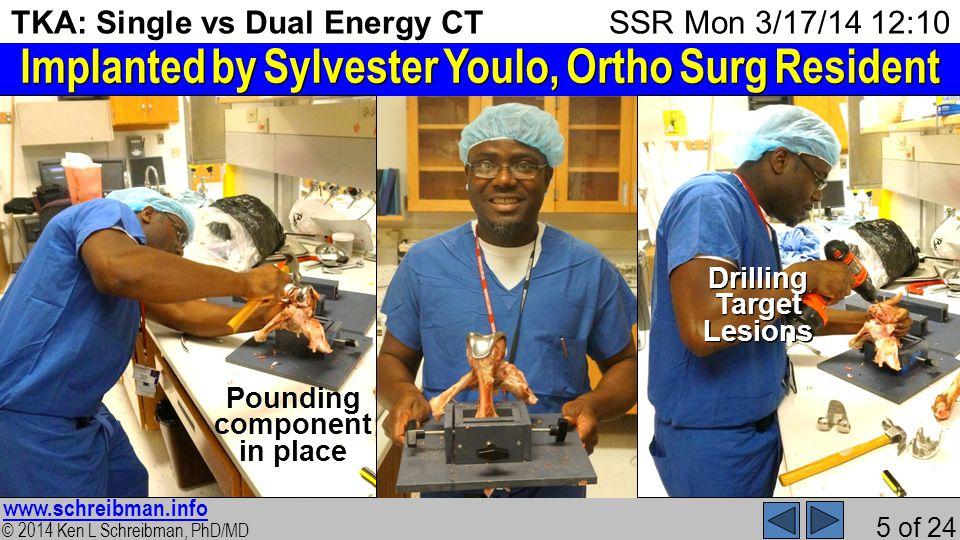 © 2014 Ken L Schreibman, PhD/MD www.schreibman.info 5 of 24 TKA: Single vs Dual Energy CT 1.ProblemProblem 2.PhantomPhantom 3.ScannerScanner 4.kVkV 5.