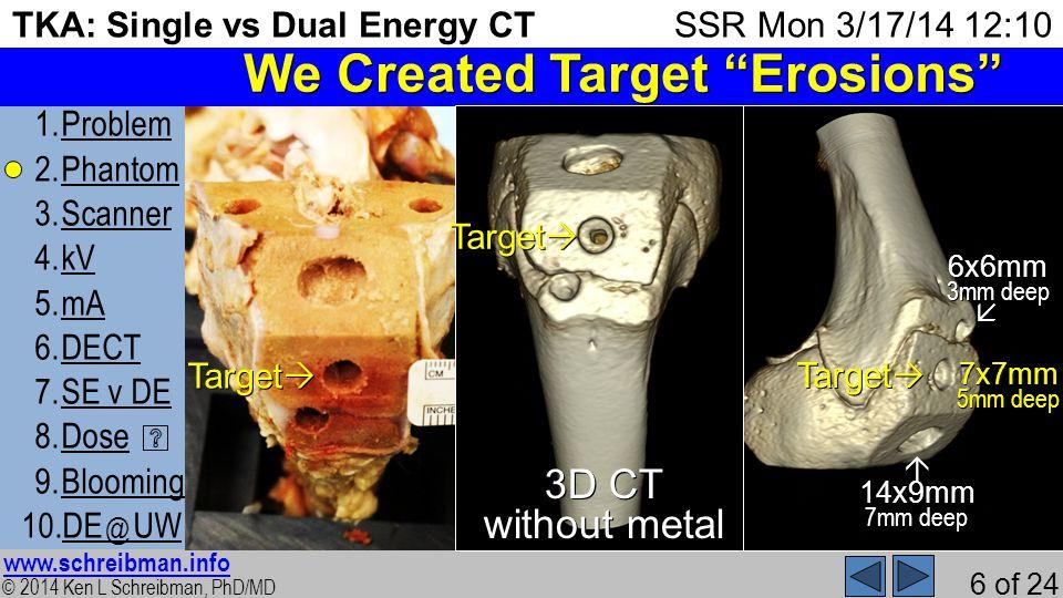 © 2014 Ken L Schreibman, PhD/MD www.schreibman.info 6 of 24 TKA: Single vs Dual Energy CT 1.ProblemProblem 2.PhantomPhantom 3.ScannerScanner 4.kVkV 5.mAmA 6.DECTDECT 7.SE v DESE v DE 8.DoseDose 9.BloomingBlooming 10.DE @ UWDE @ UW SSR Mon 3/17/14 12:10 We Created Target Erosions Target Target 7x7mm 5mm deep 6x6mm 3mm deep 14x9mm 7mm deep 3D CT without metal