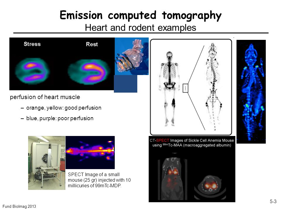 Fund BioImag 2013 5-3 Emission computed tomography Heart and rodent examples perfusion of heart muscle –orange, yellow: good perfusion –blue, purple: poor perfusion SPECT Image of a small mouse (25 gr) injected with 10 millicuries of 99mTc-MDP.