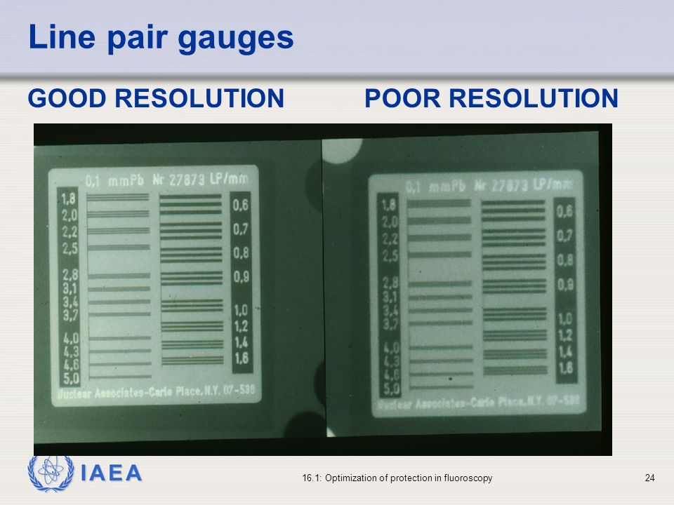 IAEA 16.1: Optimization of protection in fluoroscopy24 Line pair gauges GOOD RESOLUTIONPOOR RESOLUTION