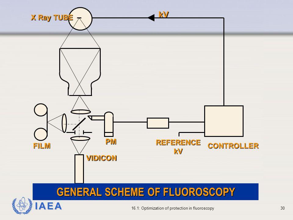 IAEA 16.1: Optimization of protection in fluoroscopy30 VIDICON FILM PM REFERENCEkV CONTROLLER X Ray TUBE kV GENERAL SCHEME OF FLUOROSCOPY