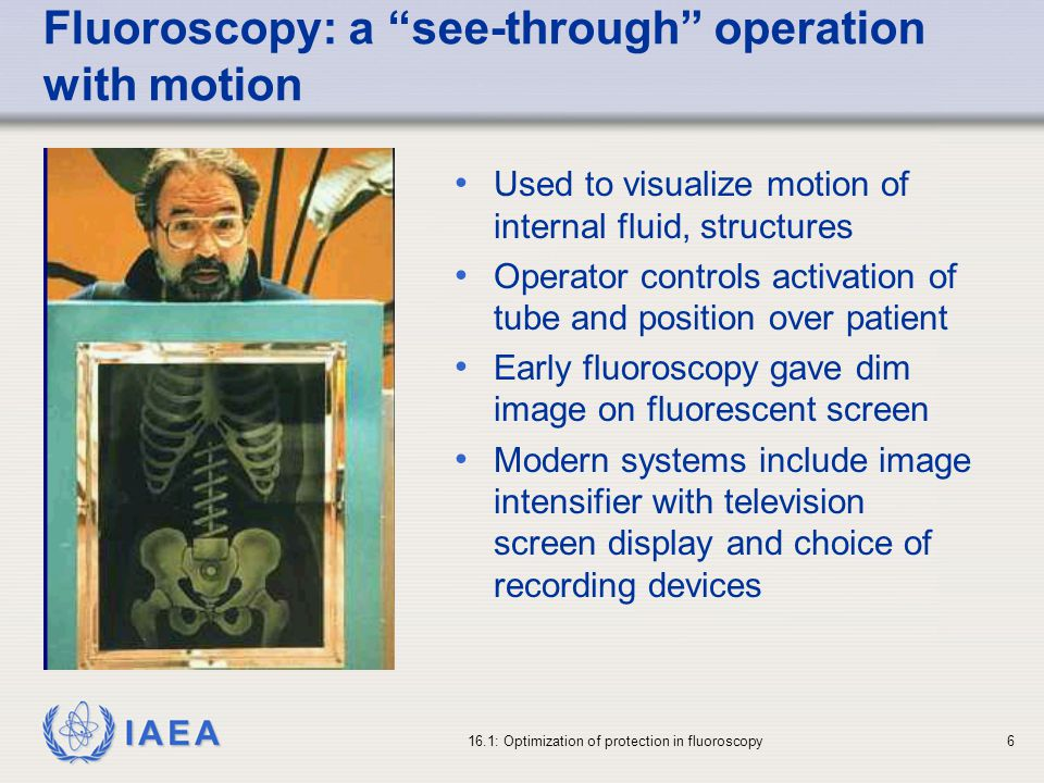 IAEA 16.1: Optimization of protection in fluoroscopy6 Used to visualize motion of internal fluid, structures Operator controls activation of tube and position over patient Early fluoroscopy gave dim image on fluorescent screen Modern systems include image intensifier with television screen display and choice of recording devices Fluoroscopy: a see-through operation with motion