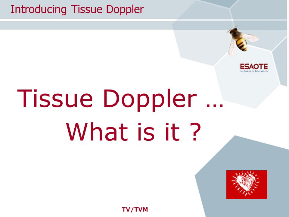 TV/TVM Tissue Doppler … Introducing Tissue Doppler What is it