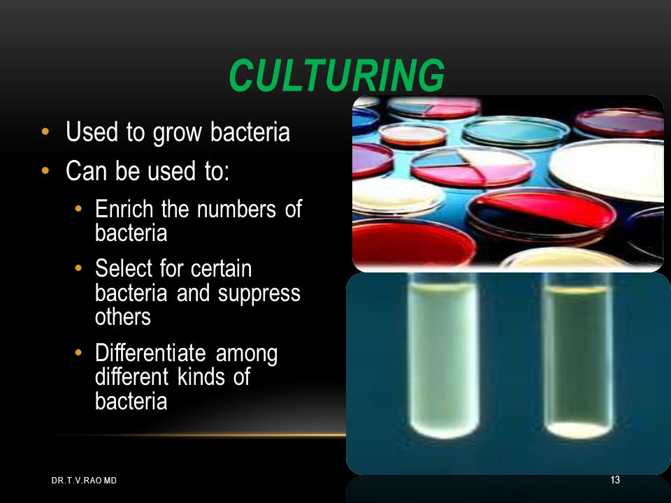 CULTURING Used to grow bacteria Can be used to: Enrich the numbers of bacteria Select for certain bacteria and suppress others Differentiate among different kinds of bacteria DR.T.V.RAO MD 13