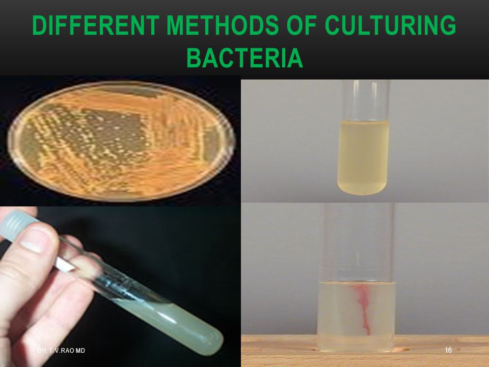 DIFFERENT METHODS OF CULTURING BACTERIA DR.T.V.RAO MD 16
