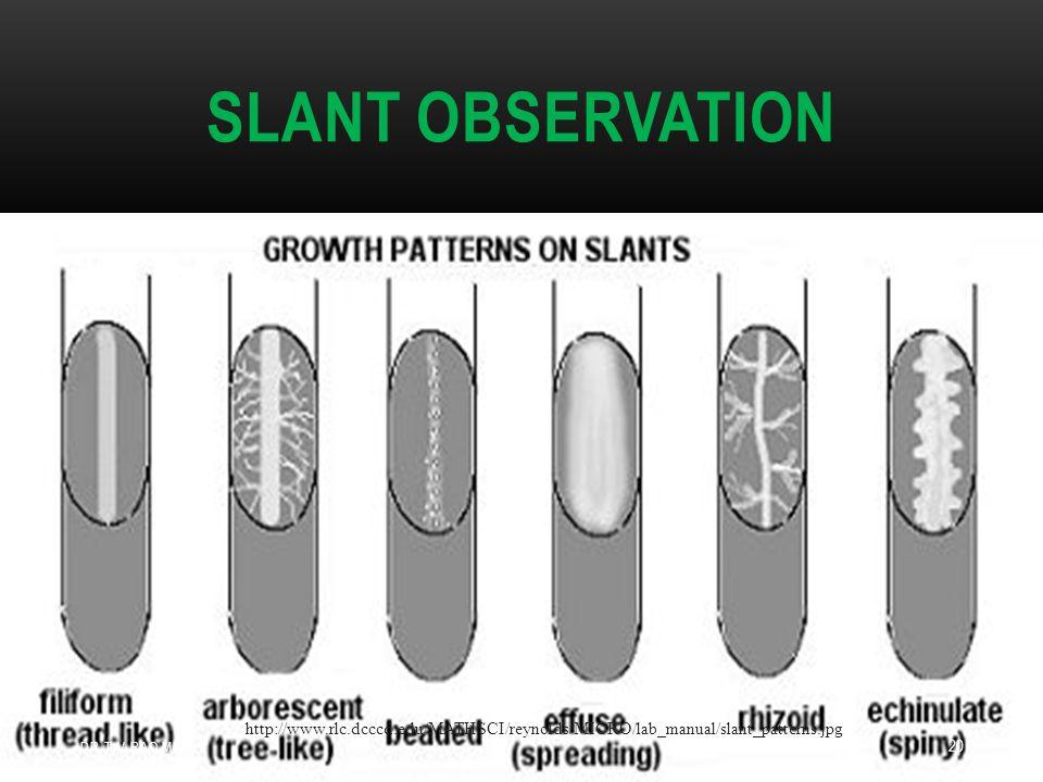SLANT OBSERVATION http://www.rlc.dcccd.edu/MATHSCI/reynolds/MICRO/lab_manual/slant_patterns.jpg DR.T.V.RAO MD 20
