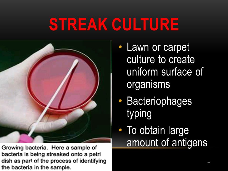 STREAK CULTURE Lawn or carpet culture to create uniform surface of organisms Bacteriophages typing To obtain large amount of antigens DR.T.V.RAO MD 21
