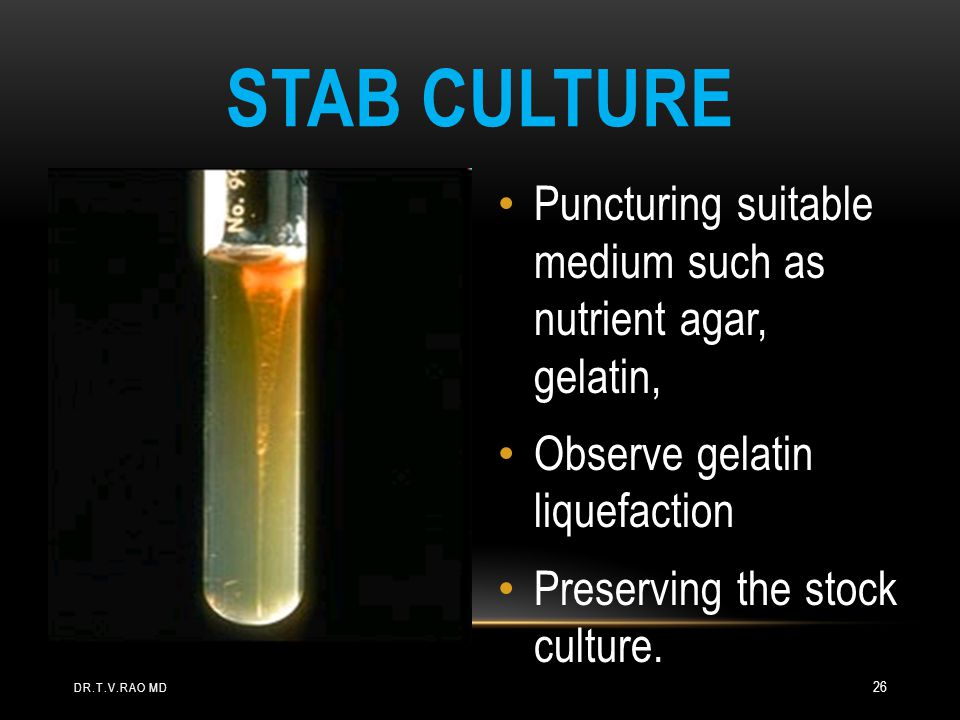 STAB CULTURE Puncturing suitable medium such as nutrient agar, gelatin, Observe gelatin liquefaction Preserving the stock culture.