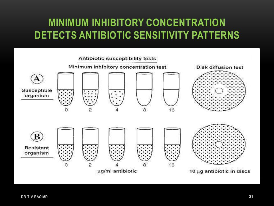 MINIMUM INHIBITORY CONCENTRATION DETECTS ANTIBIOTIC SENSITIVITY PATTERNS DR.T.V.RAO MD 31