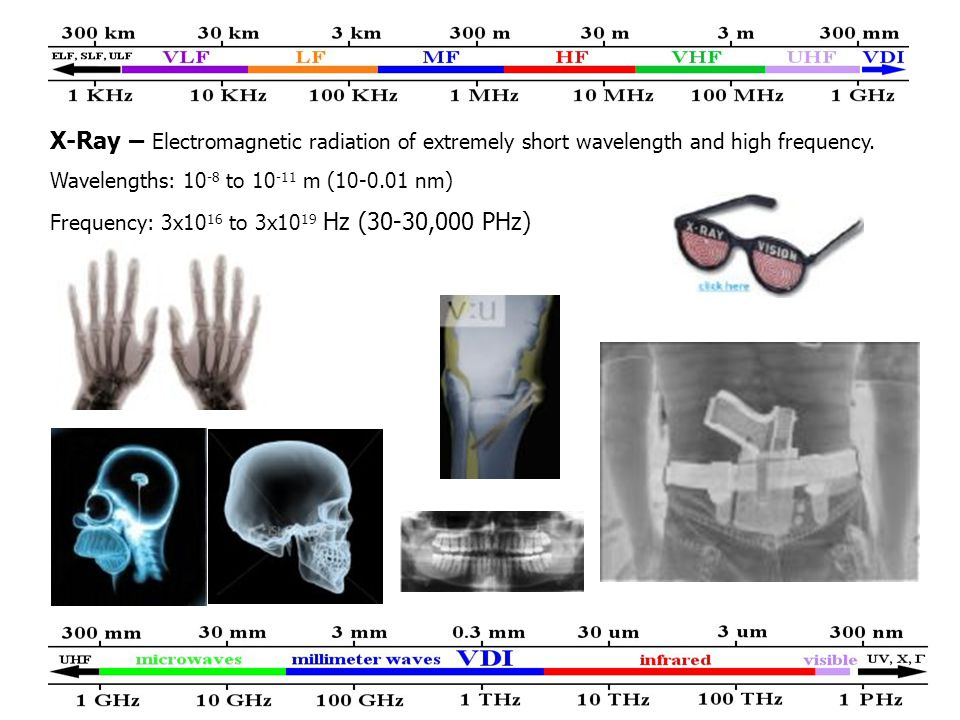 X-Ray – Electromagnetic radiation of extremely short wavelength and high frequency.