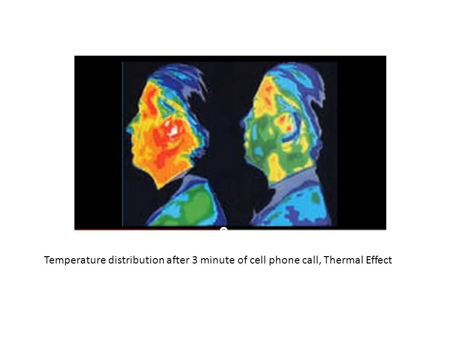 Temperature distribution after 3 minute of cell phone call, Thermal Effect