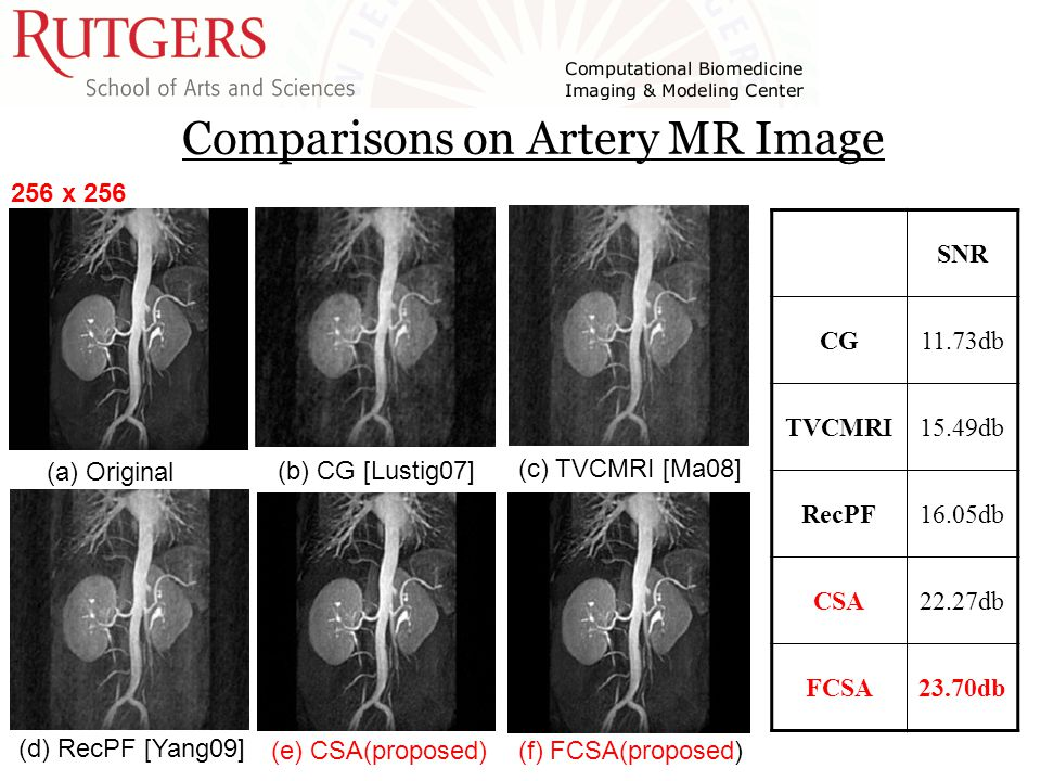 Comparisons on Artery MR Image (a) Original (b) CG [Lustig07] (c) TVCMRI [Ma08] (d) RecPF [Yang09] (e) CSA(proposed) (f) FCSA(proposed) 256 x 256 SNR CG11.73db TVCMRI15.49db RecPF16.05db CSA22.27db FCSA23.70db