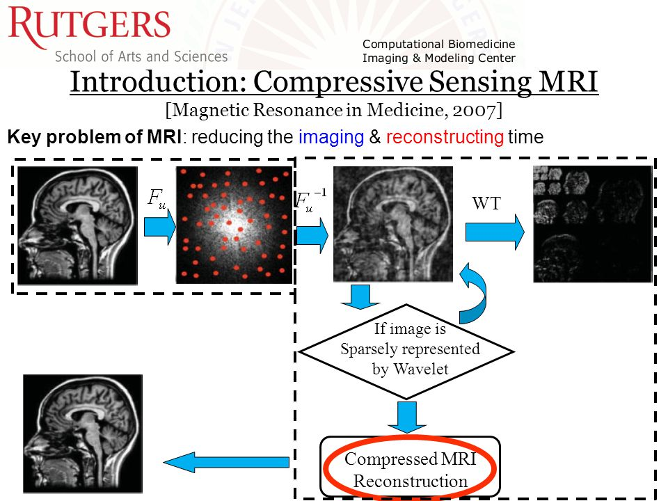 Introduction: Compressive Sensing MRI [Magnetic Resonance in Medicine, 2007] If image is Sparsely represented by Wavelet WT Compressed MRI Reconstruction Key problem of MRI: reducing the imaging & reconstructing time