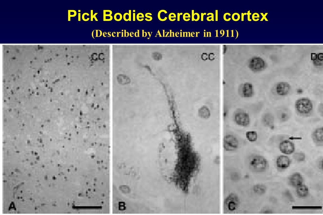 Pick Bodies Cerebral cortex (Described by Alzheimer in 1911)