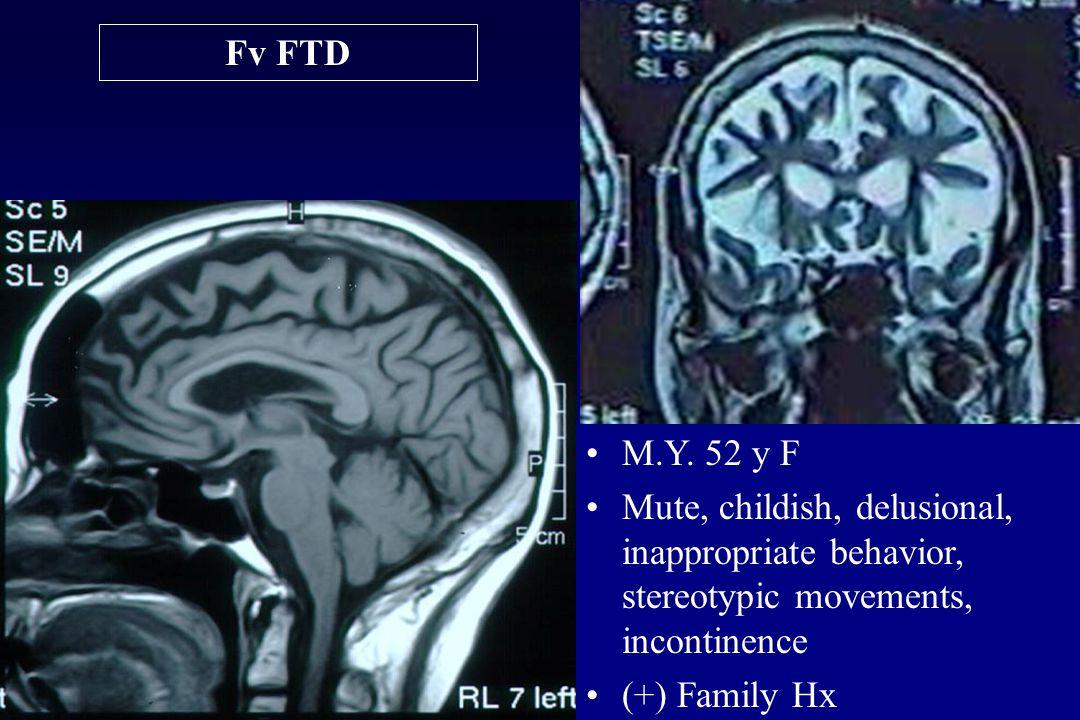 Fv FTD M.Y.