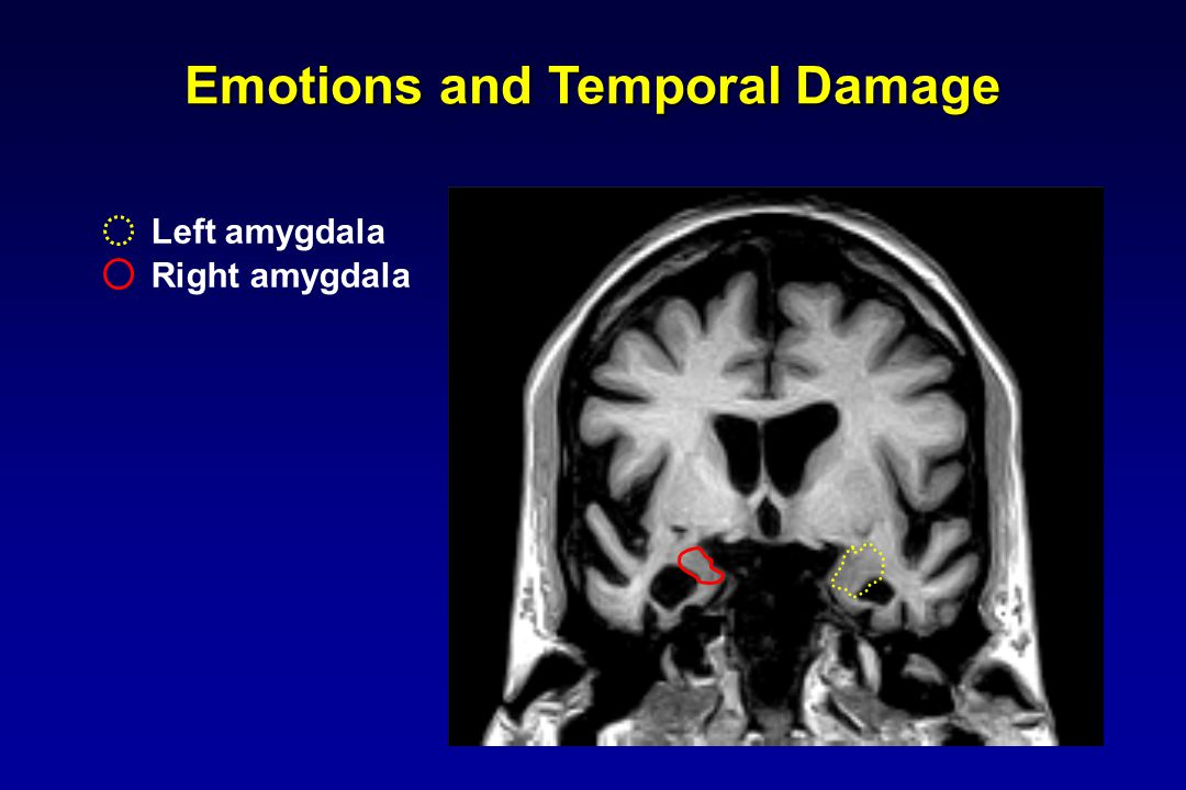 Emotions and Temporal Damage Left amygdala Right amygdala