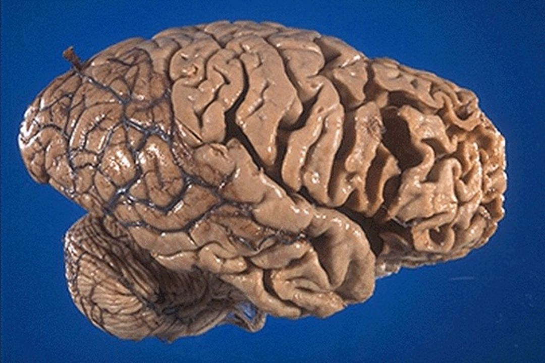 Neary Criteria Frontotemporal Lobar Degeneration Frontotemporal Lobar Degeneration Frontotemporal Dementia Frontotemporal Dementia Progressive Non-Fluent Aphasia Progressive Non-Fluent Aphasia Semantic Dementia Semantic Dementia Neary et al.