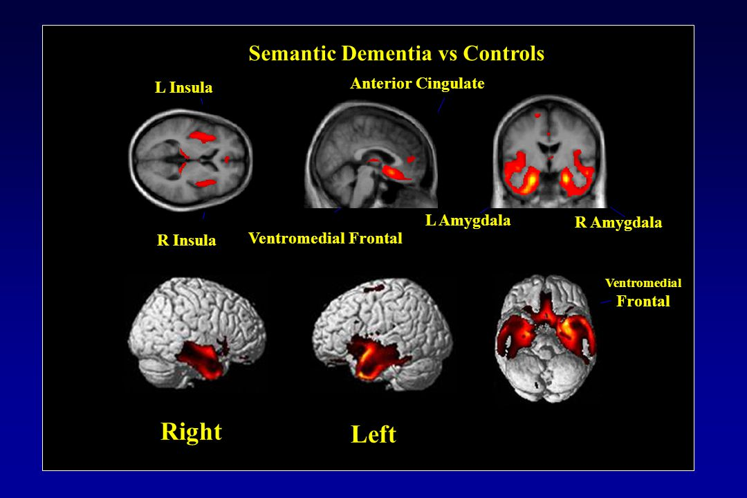 Semantic Dementia vs Controls L Insula R Insula Ventromedial Frontal Anterior Cingulate Ventromedial Frontal L Amygdala R Amygdala Left Right