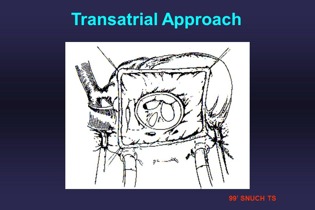 99 SNUCH TS Transatrial Approach