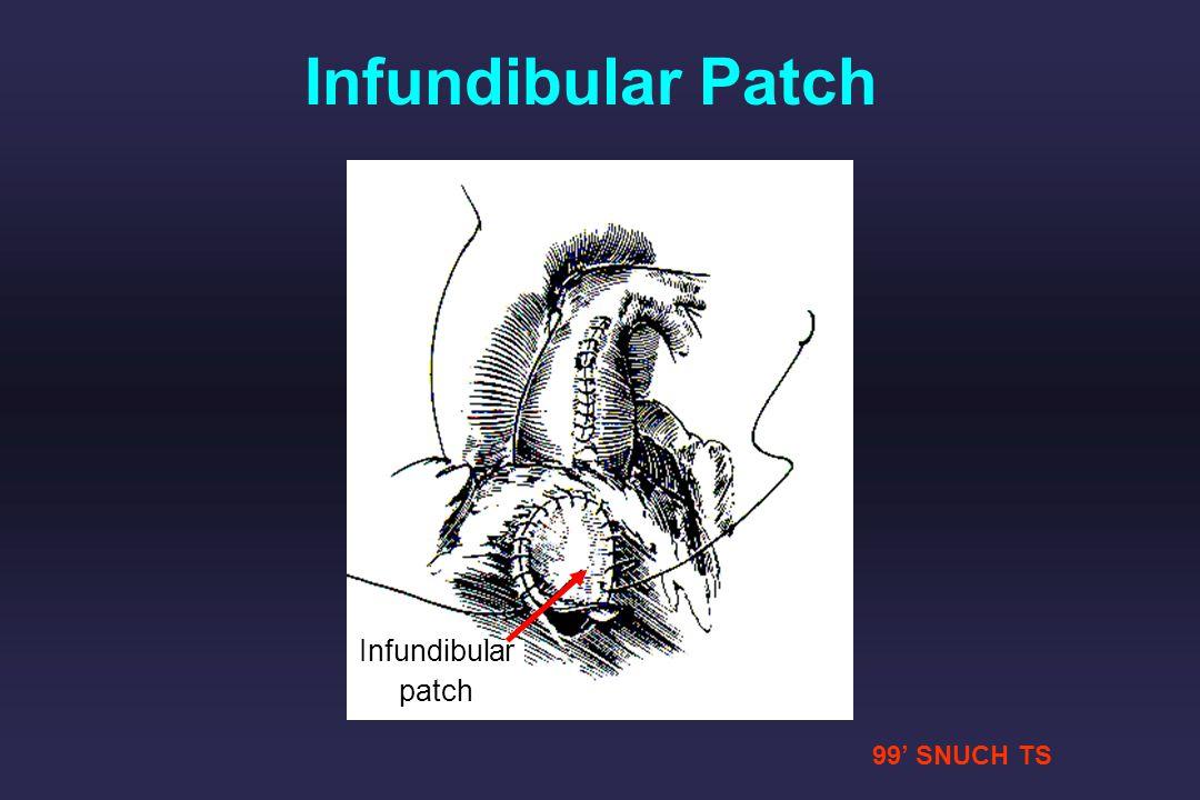 99 SNUCH TS Infundibular patch Infundibular Patch