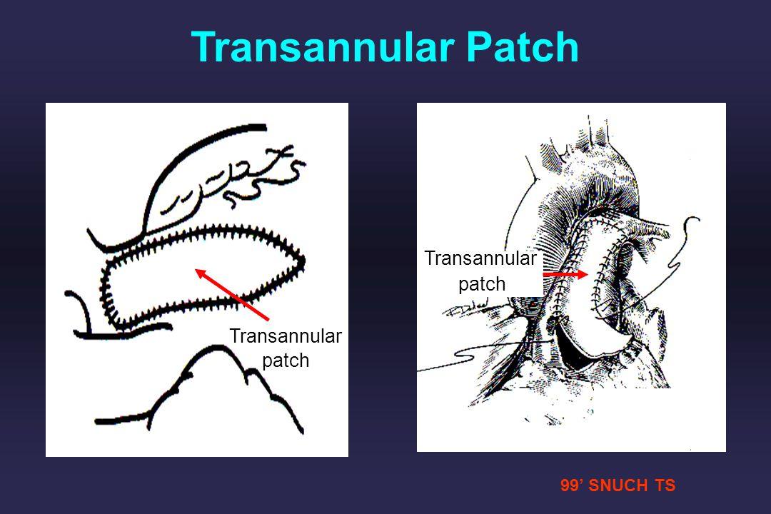 99 SNUCH TS Transannular patch Tied Transannular patch Transannular Patch