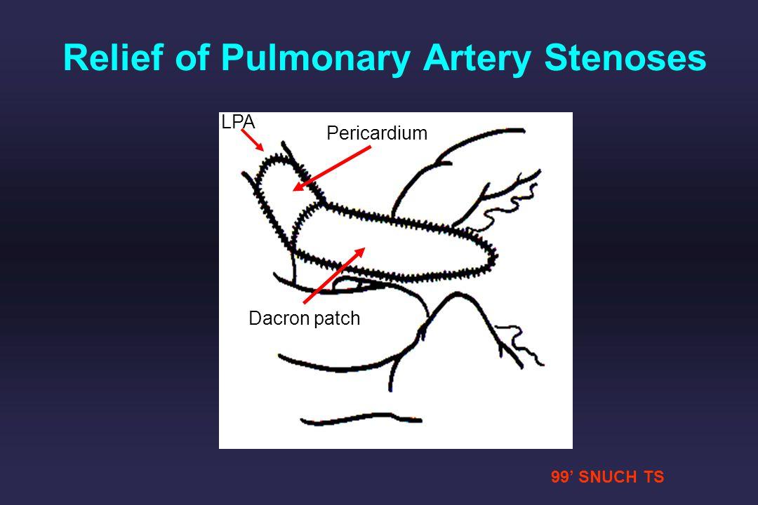 99 SNUCH TS LPA Pericardium Dacron patch Relief of Pulmonary Artery Stenoses