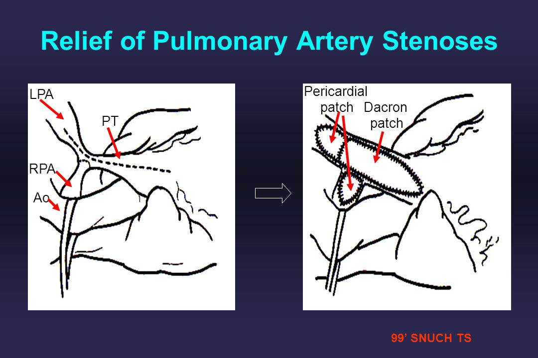 99 SNUCH TS LPA RPA PT Ao Pericardial patch Dacron patch Relief of Pulmonary Artery Stenoses
